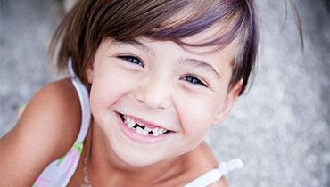 Fehlende Zähne versichern? Geht das noch?